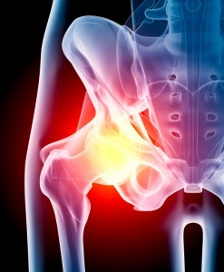 DePuy Hip Implant leading to Chattanooga lawsuit.